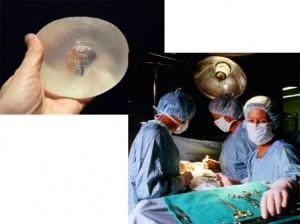 Le remboursement des implants mammaires